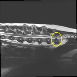 MRI of Cervical Herniating Disc