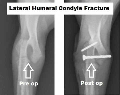 Surgical Management of Lateral Humeral Condylar Fractures