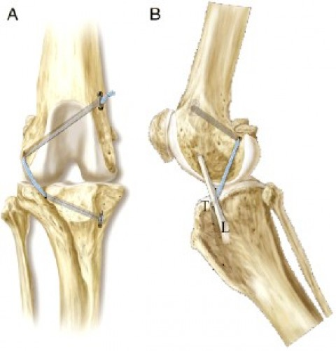 Cranial cruciate ligament (CrCL) injury